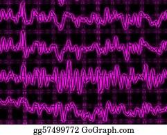Mr-And-Mrs - Brainwave On Encephalogram Eeg