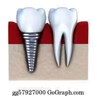Jaw - Dental Implant - Implanted In Jaw