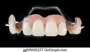 Geriatrics - Dental Implants