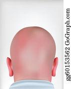 Playboy - Realistic Bald Head