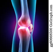 Therapy - Joint Discomfort