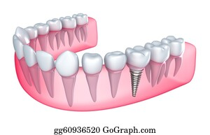 Jaw - Dental Implant In The Gum