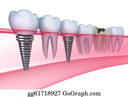 Jaw - Dental Implants In The Gum