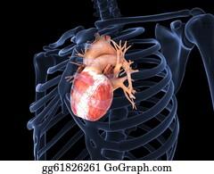 Heart-Surgery - Human Heart In X-Ray