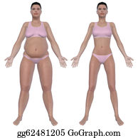 Overweight - Weight Loss Before And After Front View