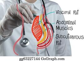 Fat - Doctor Draws Abdominal Fat