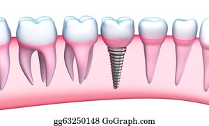 Jaw - Dental Implant Detailed View
