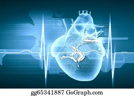 Graphics of Heart Rate Monitor - Royalty Free - GoGraph