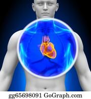 Heart-Surgery - Medical X-Ray Scan - Heart