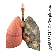 Anatomically - Lung Disease Before And After