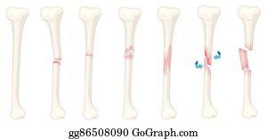 Leg Fracture Clip Art - Royalty Free - GoGraph